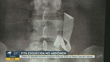 Mulher descobre que estava com uma fita cirúrgica esquecida dentro do corpo há 4 anos - O objeto foi deixado durante cesariana feita em 2016 na Santa Casa de Capivari.