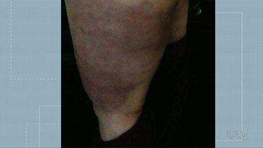 Polícia investiga clínicas de estética em Foz do Iguaçu - A ação foi batizada de Operação Afrodite.