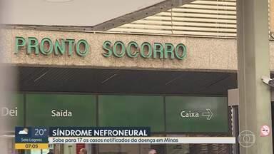 Secretaria de estado de saúde confirma 17 casos notificados por doença neufroneural - Destes 17 pacientes, 16 são homens e uma mulher. 4 casos de intoxicação por dietilenoglicol já foram confirmados.