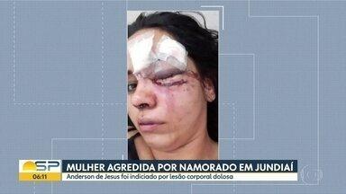 Namorado agressor indiciado por lesão corporal dolosa em Jundiaí - Delegado disse que ainda investiga se o crime foi tentativa de feminicídio.