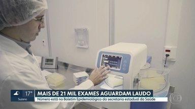 SP tem mais de 21 mil exames da Covid-19 na fila de espera - O número de mortes por Covid-19 já chega a 540 em São Paulo. São 8.216 casos confirmados na doença no estado.