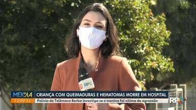 Criança com queimaduras e hematomas morre em hospital - Polícia de Telêmaco Borba investiga se o menino foi vítima de agressão.