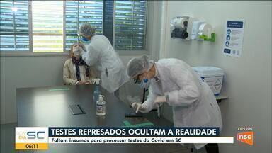 SC registra falta de insumos para processar testes de coronavírus - SC registra falta de insumos para processar testes de coronavírus