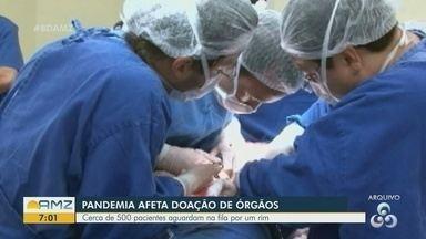 No AM, cerca de 500 pacientes aguardam por transplante de rins - Pandemia afeta a doação de órgãos.