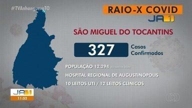 Raio-x Covid: São Miguel do Tocantins tem 327 casos confirmados da doença - Raio-x Covid: São Miguel do Tocantins tem 327 casos confirmados da doença