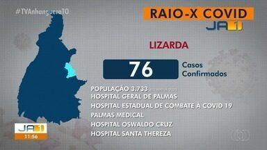 Raio-x Covid: Lizarda tem 76 casos confirmados da doença - Raio-x Covid: Lizarda tem 76 casos confirmados da doença