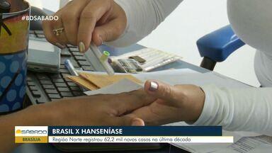 Região Norte registra mais de 60 mil de novos casos de hanseníase na última década - Doença é provocada por bactéria que ataca pele e nervos.