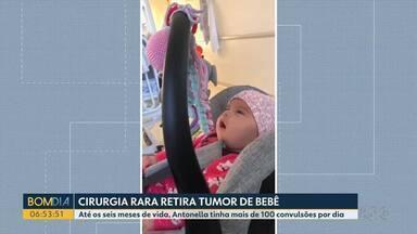 Cirurgia rara ajuda a melhorar a vida de bebê de 6 meses - Antonela tinha mais de 100 convulsões por dia.