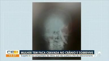 Mulher sobrevive à facada no crânio; ex-companheiro foi preso - Saiba mais em g1.com.br/ce