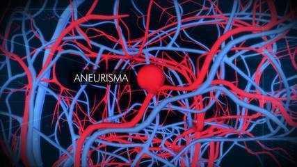 Entenda o que é um aneurisma cerebral