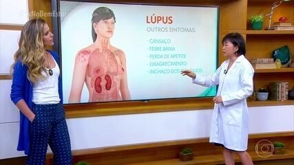 Lúpus é uma doença autoimune