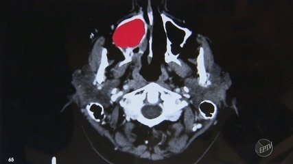 Unicamp usa software para auxiliar retirada de tumores de pescoço e cabeça