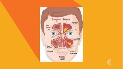 A sinusite pode agravar durante a primavera. Fique atento!