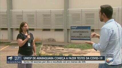 Unesp de Araraquara começa realizar testes para diagnóstico de Covid-19