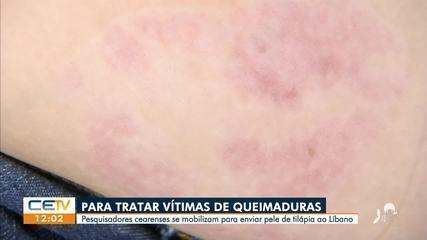 Pele de tilápia vai ser enviada do Ceará para tratar vítimas de queimaduras no Líbano