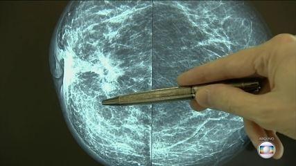 Pandemia atrasa os exames para o diagnóstico de câncer de mama