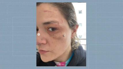 Ex-mulher mostra hematomas após ser agredida por diretor da Gaviões e atual companheira dele