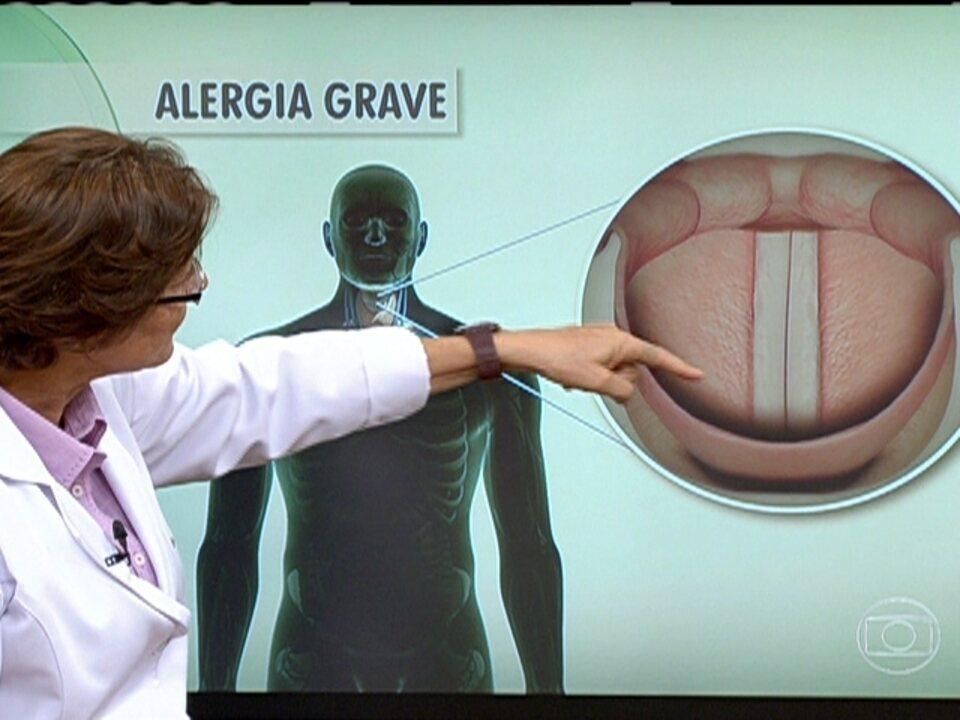 sobre sexta feira alergia reporter de Globo