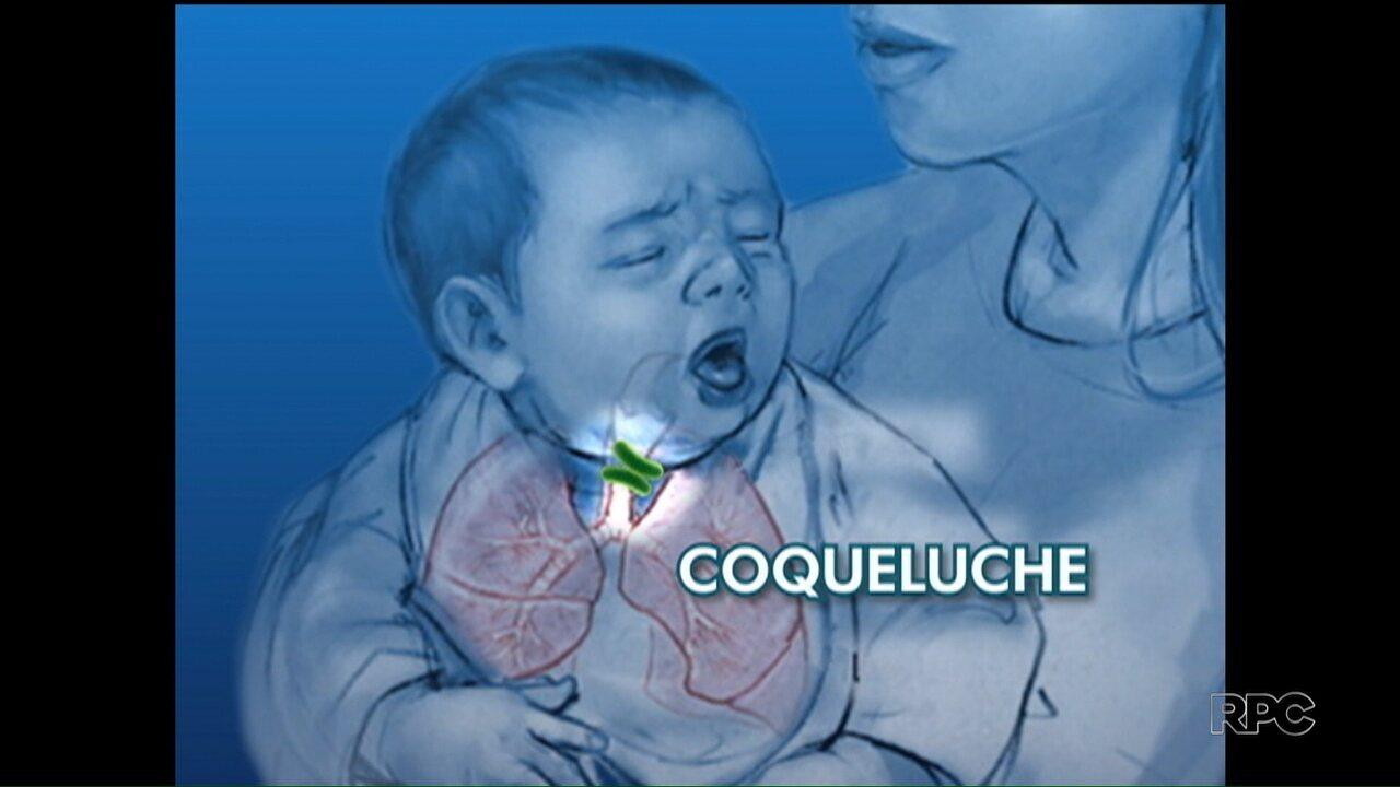 """Résultat de recherche d'images pour """"Coqueluche"""""""