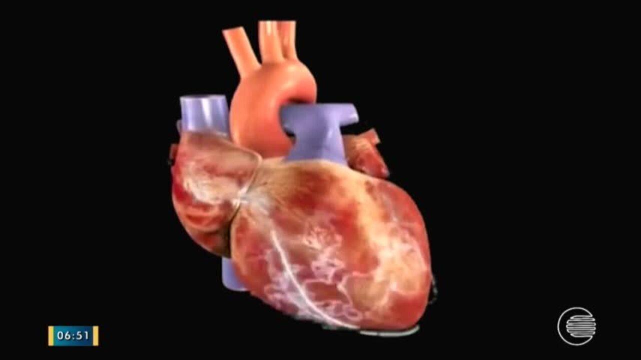 Arritmologista explica como prevenir e tratar a arritmia cardíaca