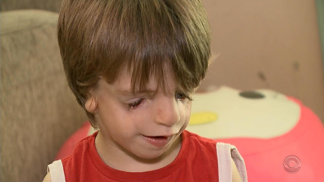 Menino de Santa Maria que tem síndrome retrata no filme 'Extraordinário' aguarda ajuda