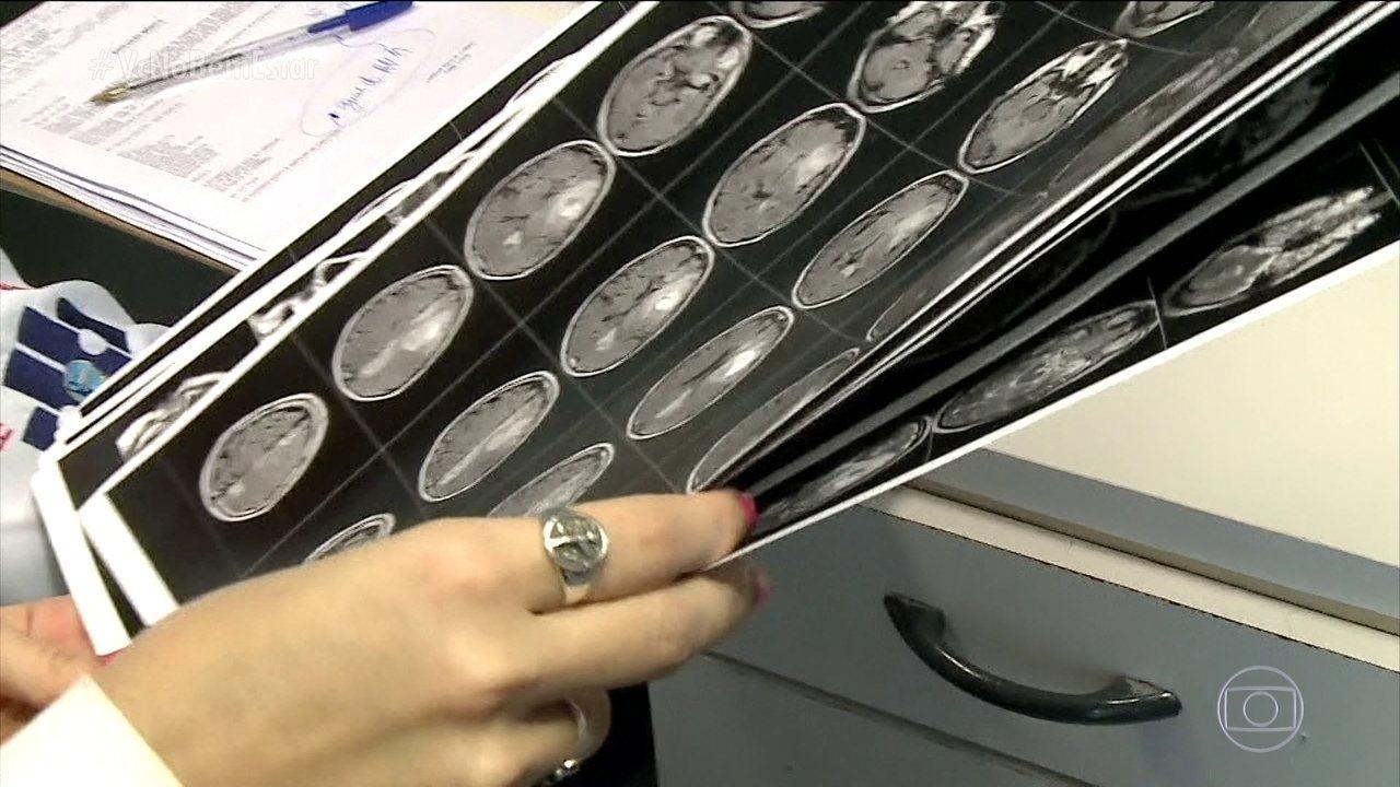 Pesquisa aponta aumento de casos de AVC entre jovens