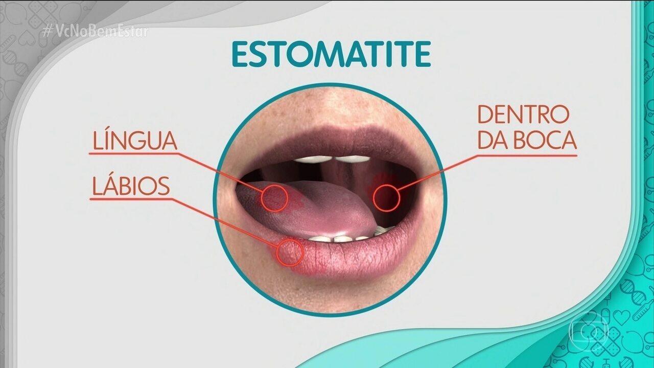 Estomatite afeta pessoas de qualquer idade