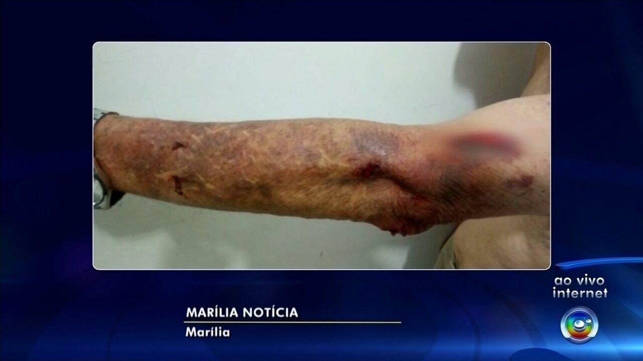 Casal é preso após amarrar e queimar idoso com cigarro durante assalto em Marília