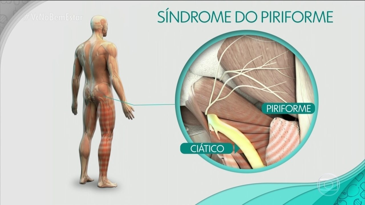 O que é síndrome do piriforme?