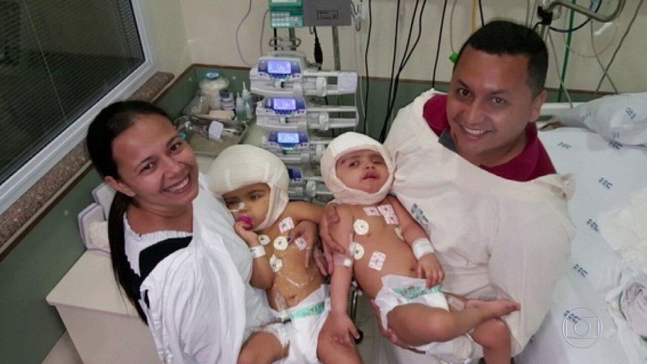 Irmãs siamesas, que nasceram ligadas pela cabeça, se recuperam após cirurgia