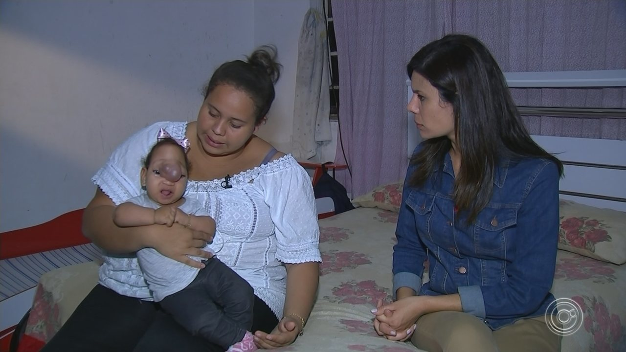 Familía de bebê com malformação faz campanha para consegurir cirurgia