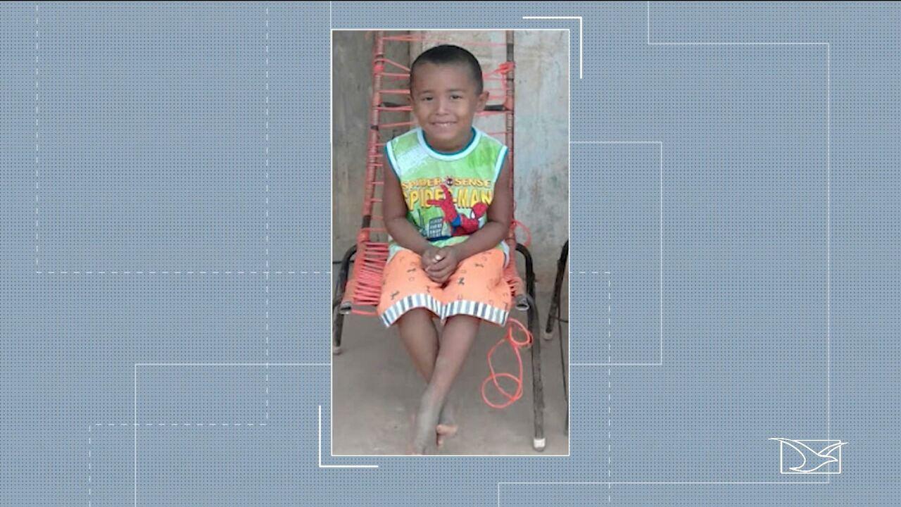 Estado de saúde de menino que sofreu queimaduras em Buriticupu é grave