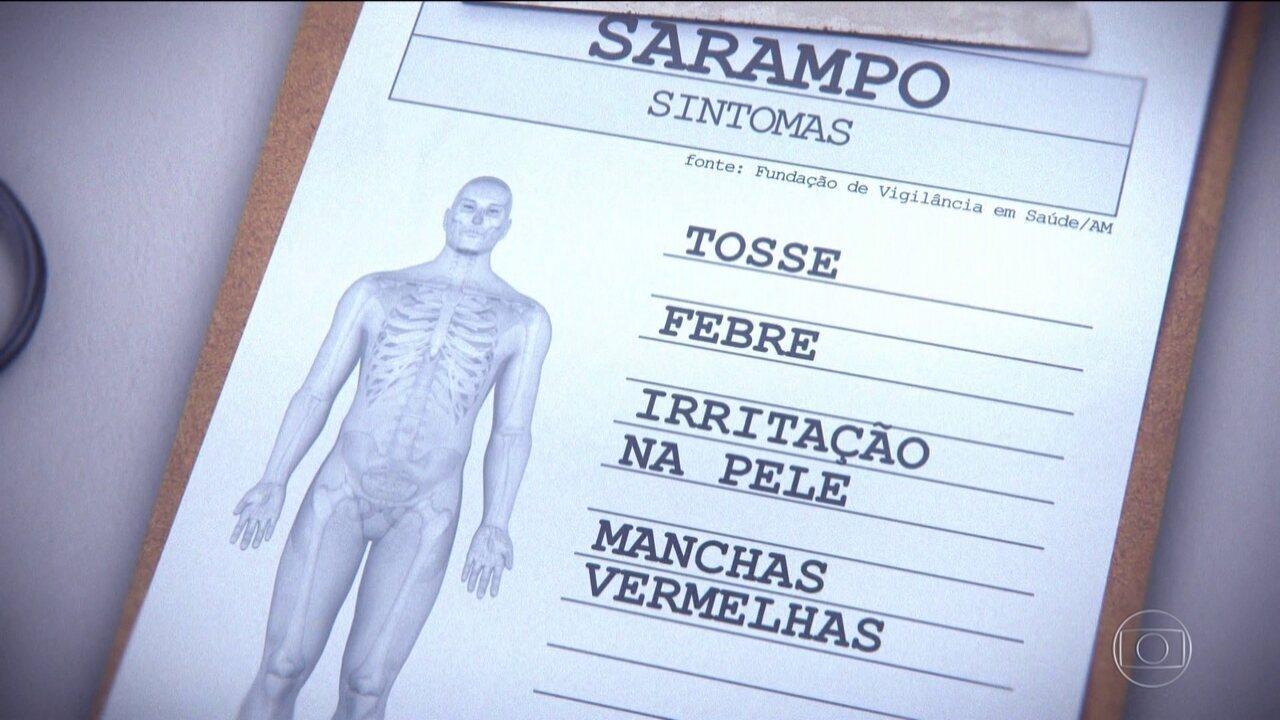 Sociedade Brasileira de Pediatria alerta para avanço do Sarampo na região Norte.