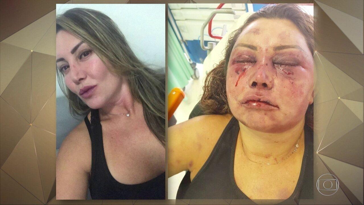 Mulher espancada por quatro horas diz ter certeza que agressor queria matá-la