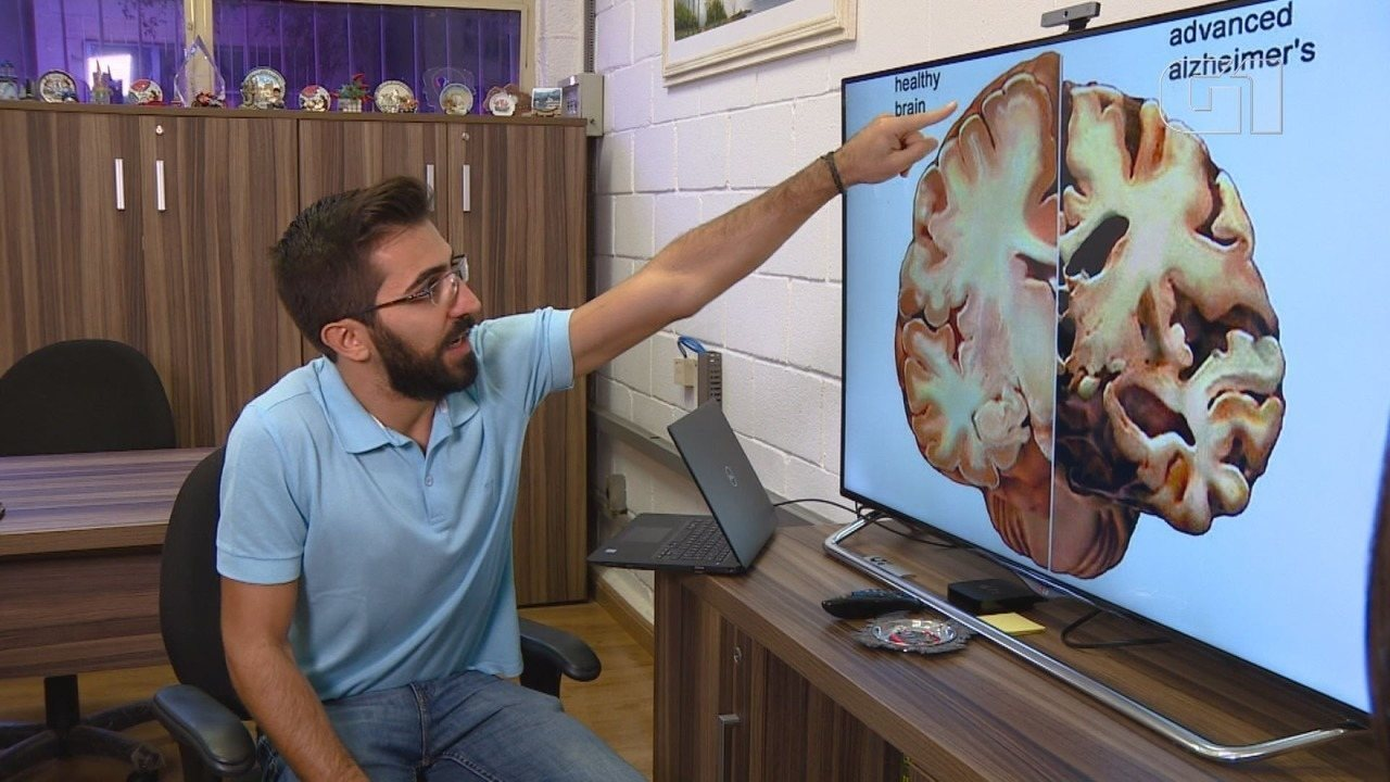 Pesquisadores da Unicamp desenvolvem método inédito para diagnosticar Alzheimer
