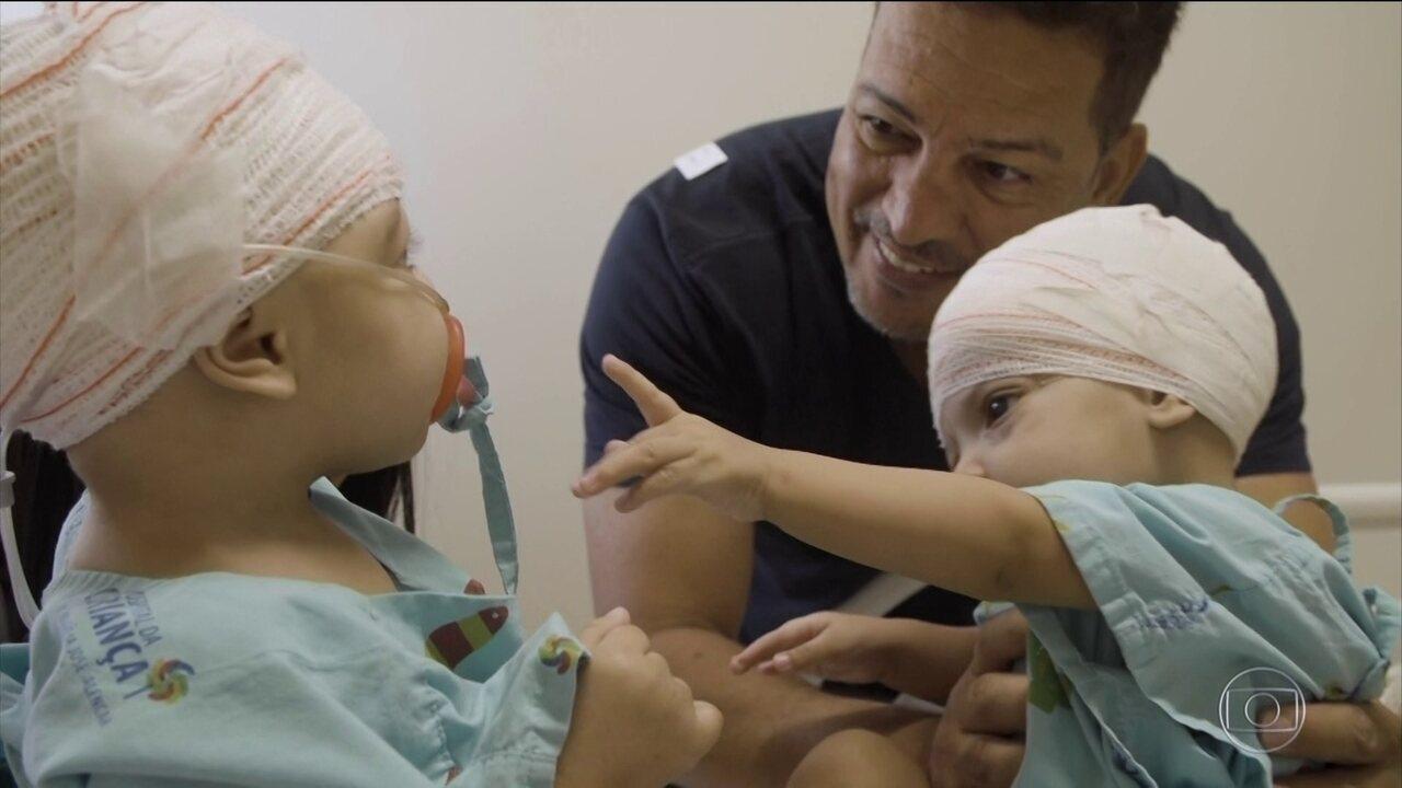 Imãs siamesas que foram separadas após cirurgia têm o primeiro reencontro