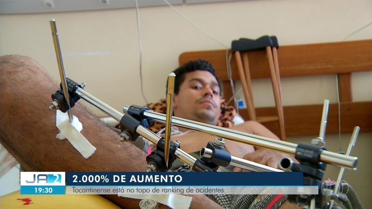Tocantins é o estado que mais gasta com pacientes acidentados