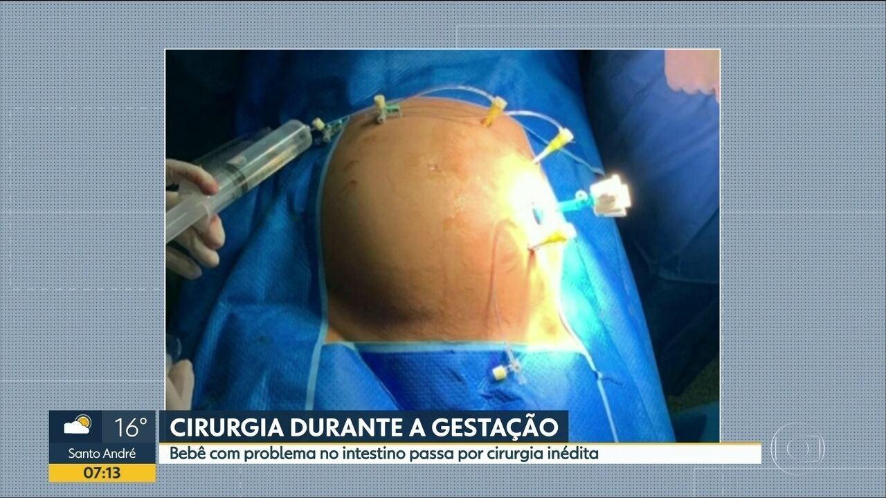 Cirurgia durante a gestação