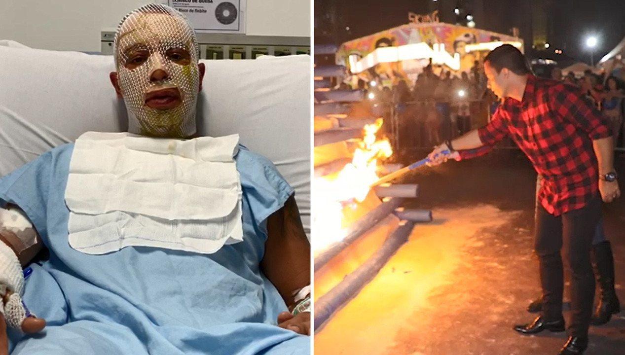 Prefeito de Osasco fala sobre acidente que sofreu com a mulher ao acender fogueira