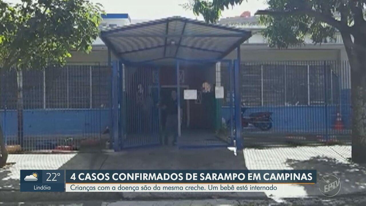 Campinas registra 4 casos de sarampo na região do DIC