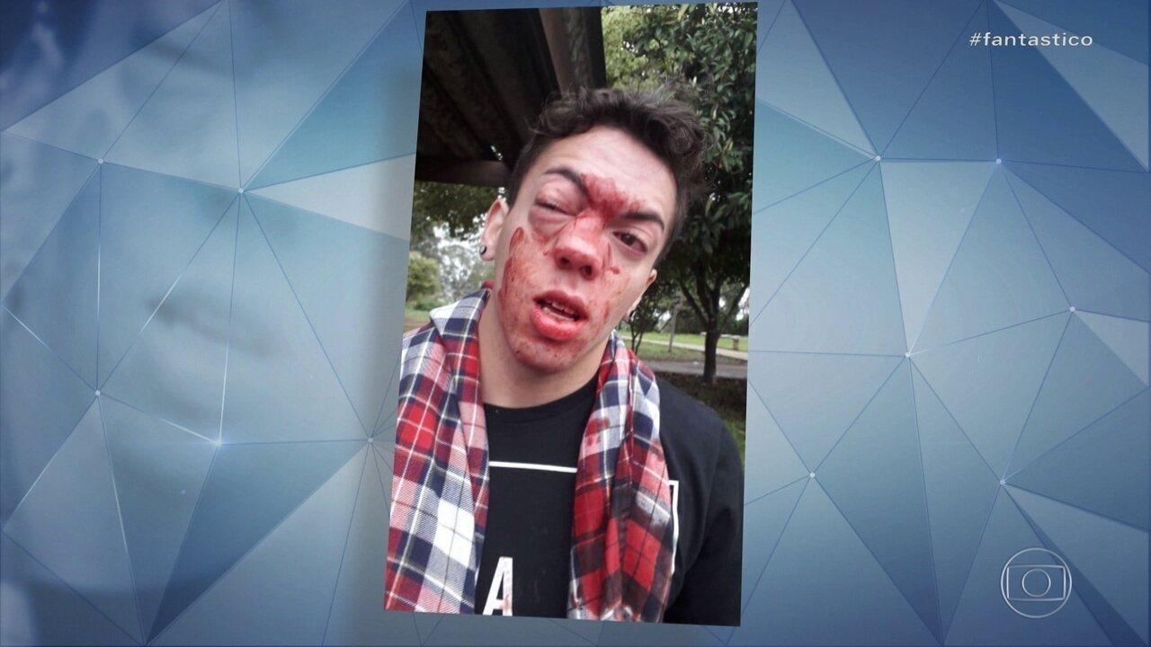 Jovem diz que foi agredido por motorista de ônibus em SP e denuncia homofobia