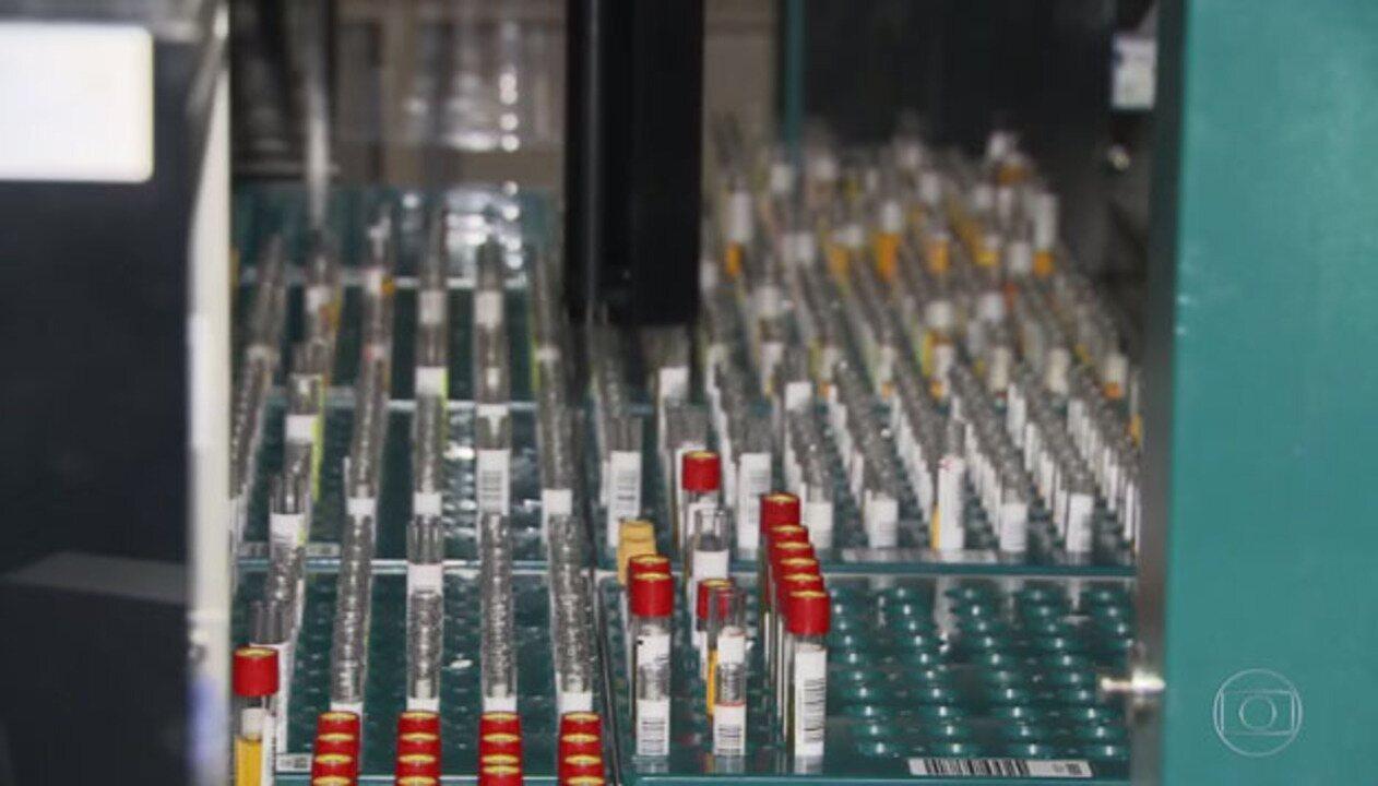 Governo diz que manterá padrão de testes, apesar de OMS pedir mais exames
