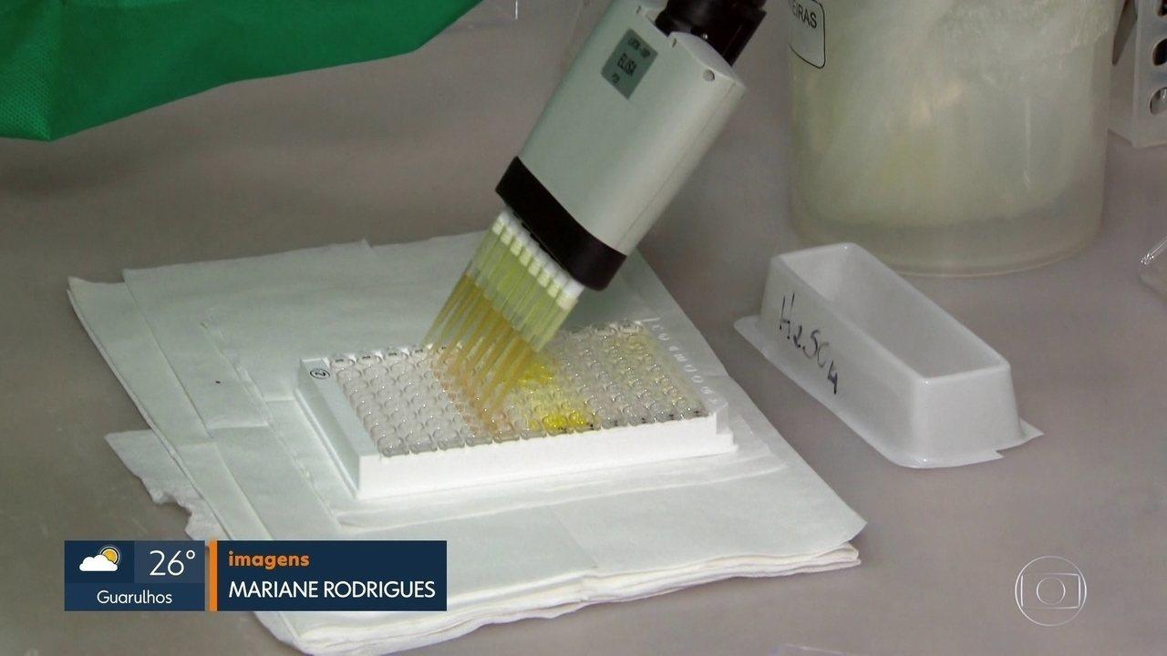 Testes da Covid-19 tem fila de exames e mais amostras chegando