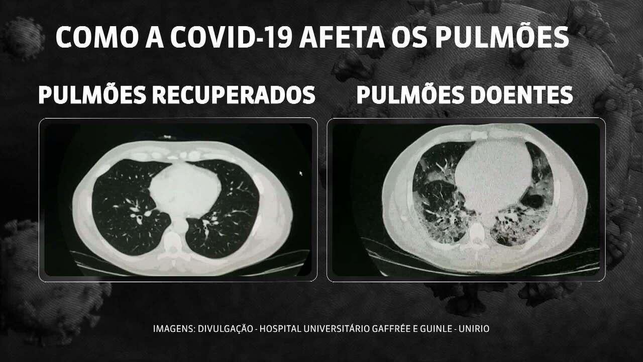 Imagens mostram diferenças entre pulmões recuperados da Covid-19 e pulmões doentes
